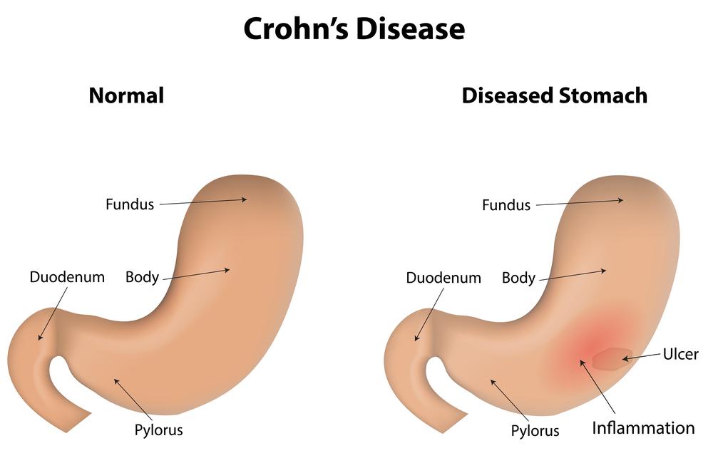 Treatment For Crohn S Disease