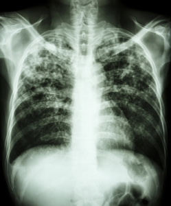 Coccidioidomycosis (Chest X-ray With Bilateral Nodular Lesions)