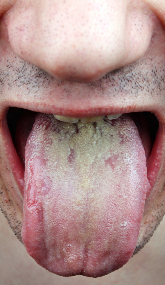 Tongue on yeast treatment infection