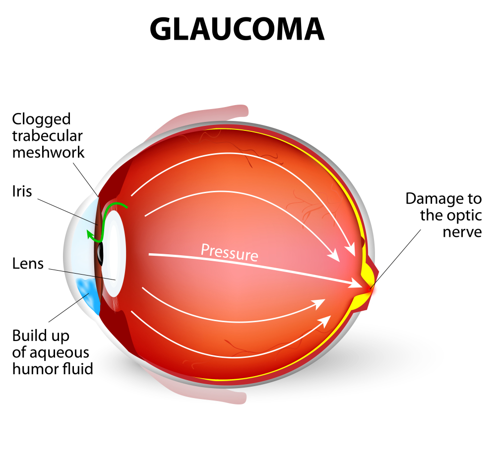 case study of patient with glaucoma