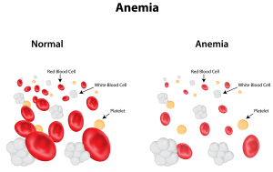 Iron deficiency anemia and Sideroblastic anemia