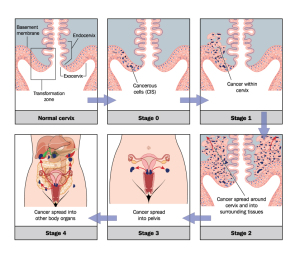 Staging Of Cervical Cancer (More Detail)
