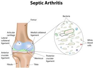 Septic Knee Arthritis