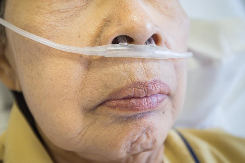 chronic obstructive pulmonary disease copd for Copd is een afkorting van de engelse term chronic obstructive pulmonary disease, een chronisch obstructieve longziekte (er is dus een aanhoudende blokkade in.