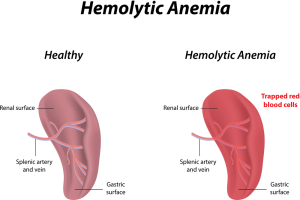 Hemolytic Anemias from Changes in the RBC's