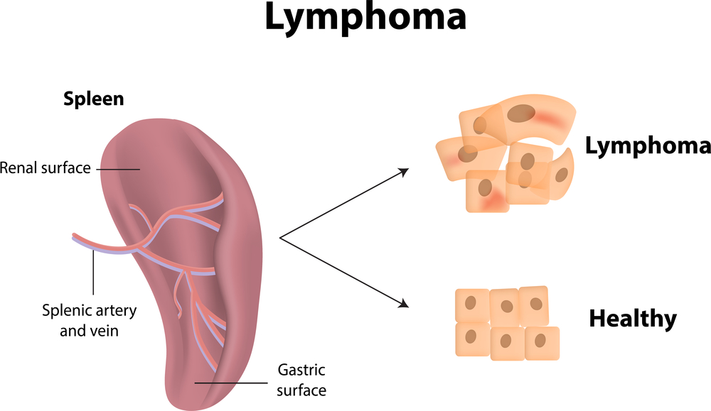 lymphomas net health book