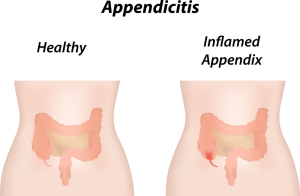 Lower Abdomen (Appendicitis)