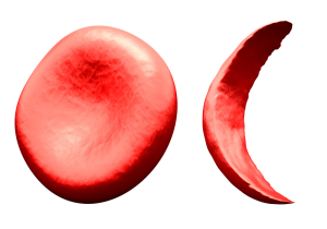 Hemoglobinopathies (Normal Red Blood Cell Left, Sickle Cell Right)