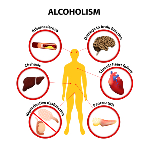Acute Pancreatitis (Alcohol Is One Of The Causes)