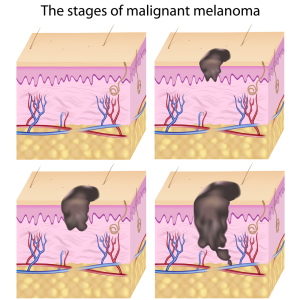 Staging Of A Melanoma