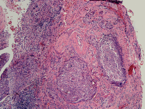 Histopathology Of Cervical Cancer