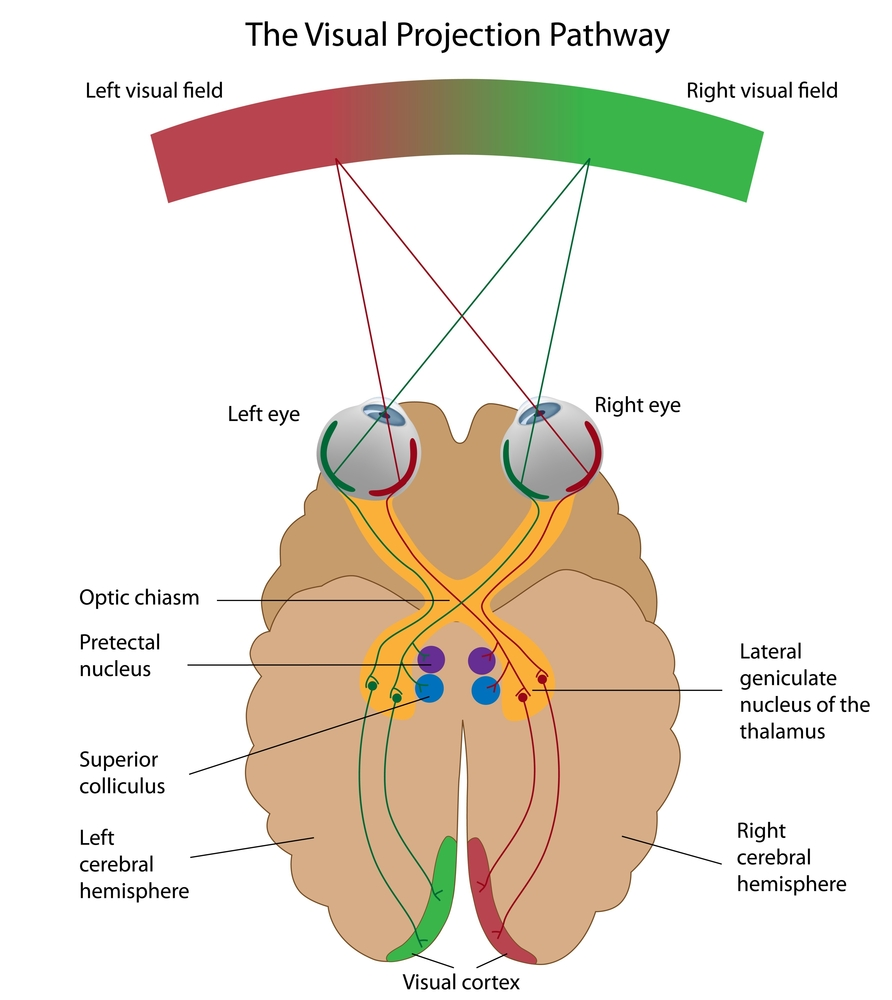 Higher Optic Pathway Lesion
