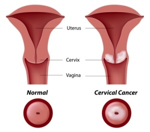 Cervical Cancer Tumor Growth