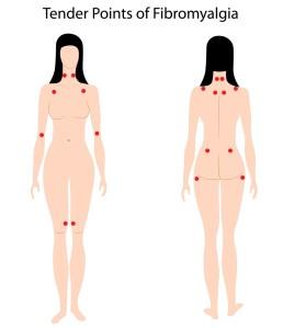 Diagnosis Of Fibromyalgia