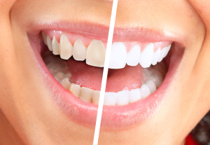 Teeth Whitening Cosmetic Surgery