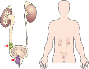 Prostate Cancer Symptoms (Hydronephrosis Explained)