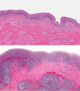 Bladder Cancer Pathology (Above: Normal; Below: Cancerous)