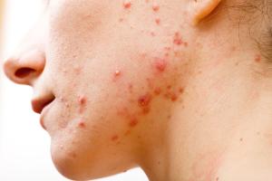 Skin Infection (Acne Skin)