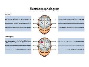Diagnostic Tests For Epilepsy