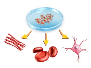 Stem Cells Help Stroke Victims