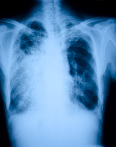 Lower Lobe Pneumonia
