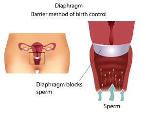 Sexually Transmitted Diseases Prevention (Cervical Cap)