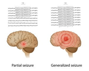 Absence Seizures (This Is A Partial Seizure)