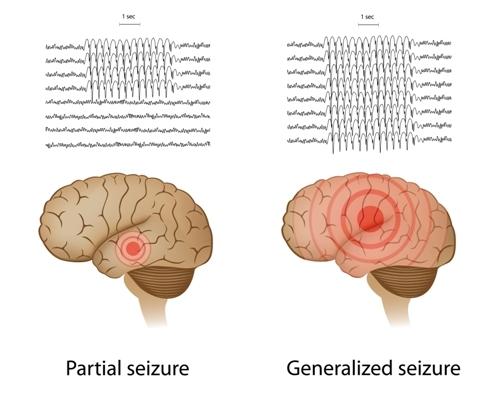 Absence Seizures - Net Health Book
