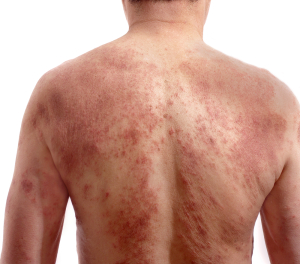 Skin Diseases (Man With Itchy Dermatitis Problem)