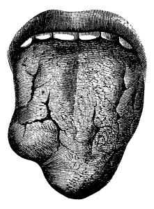 Syphilis (Gumma Of Tongue)