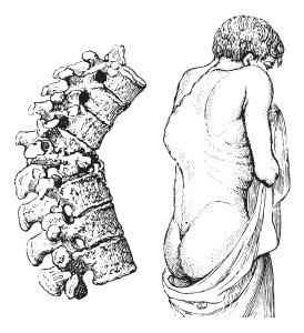 Tuberculosis Of Bones And Joints (Pott's Disease)
