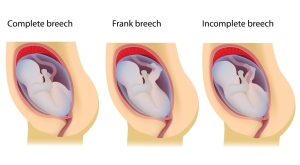 Prader Willi Syndrome (Often Comes As Breech Delivery)