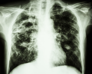 Tuberculosis (Cavernous TB Right Upper Lung, Left From Your View)