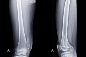 Langer Giedion Syndrome (Exostosis In Lower Part Of Femur)
