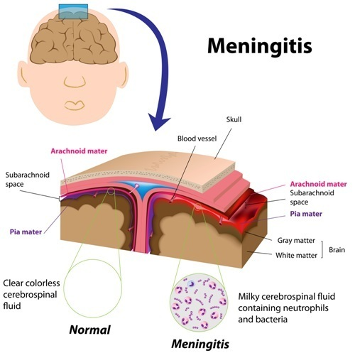 Viral Infection Link To Sjogren S Syndrome: Meningeal Tuberculosis