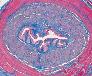 Urethritis (Cross Section Of Female Urethra)