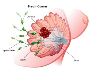 Breast Cancer Staging (Spread Of Tumor Cells Into Lymph Nodes)