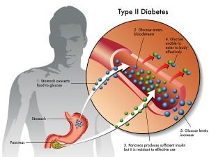 Magnesium Supplements Cut Diabetes Risk