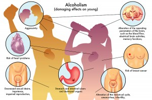 Treating Alcoholic Hepatitis With Granulocyte Colony-Stimulating Factor (GCSF)