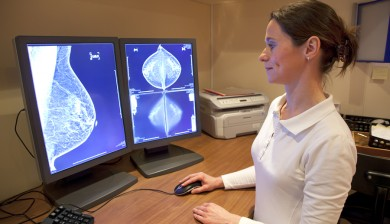 Breast Artery Calcification Predicts Heart Attacks