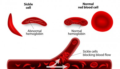 Sickle Cell Disease Cured