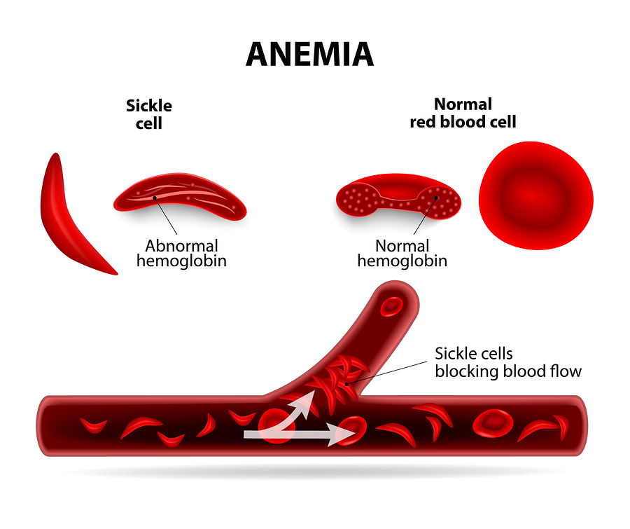 a report on the sickle cell disease in the united states Between 10 and 40 percent of the people in these regions carry the sickle cell  in the state of sickle cell disease: 2016 report,  the united states,.