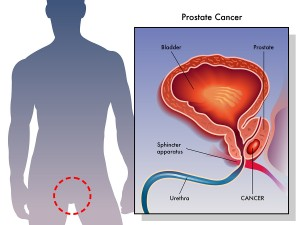 Western Diet Bad For Prostate Cancer