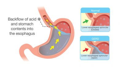 Kidney Failure Linked To Acid Medication