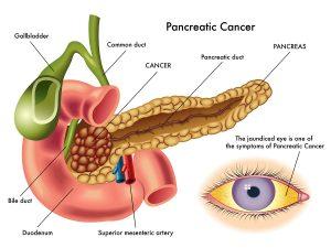B vitamins Cut Pancreatic Cancer