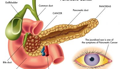 B vitamins Cut Pancreatic Cancer