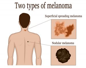 Melanoma Survival Improved With The Immunomodulator Opdivo®