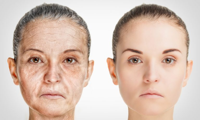 different type of aging Types of aging including less common types and symptoms and diagnosis of the correct subtype.