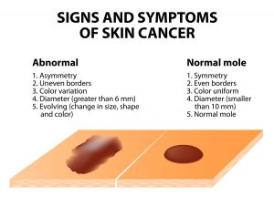 High-Tech Tool To Screen For Skin Cancer