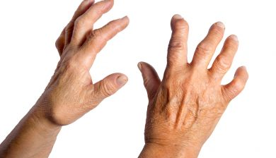 Quercetin Helps Rheumatoid Arthritis Patients